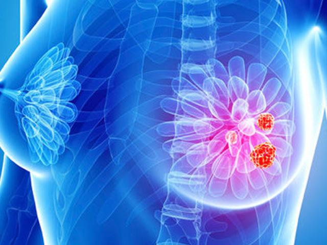 Despre prevenția si vindecarea cancerului de sân