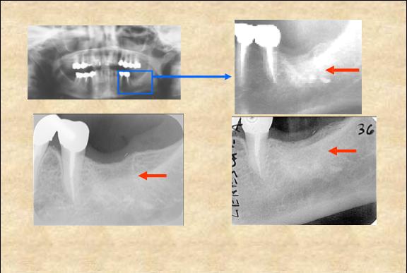 Parodontologie si restructurare osoasa